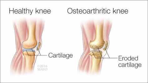 osteoarthritis01